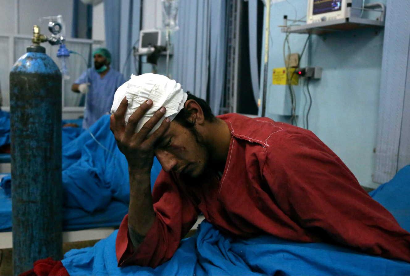 Ranjeni čovek u bolnici u Kabulu nakon samoubilačkog bombaškog napada (Foto: Rahmat Gul/AP)